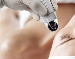 DermaFrac is a breakthrough micro-channeling technology for beautiful skin with no pain or downtime.